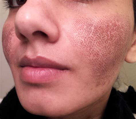 cover your acne scars picture 9