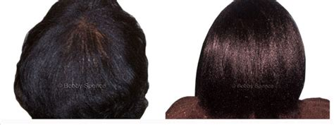 black thinning hair picture 1