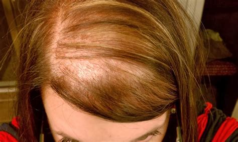 alopecia hair loss picture 19