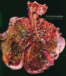 cystic fibrosis in the breast picture 13