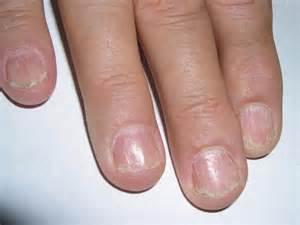 lichen planus toenails picture 1
