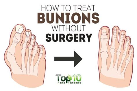 are you put to sleep for bunion surgery picture 5