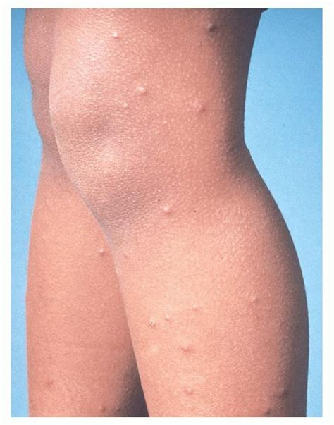 skin rash picture 7