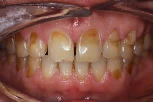 dental erosion & teeth whitening picture 5