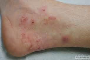 fungal skin infection picture 18