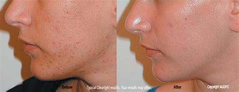 clearlight acne treatment picture 2