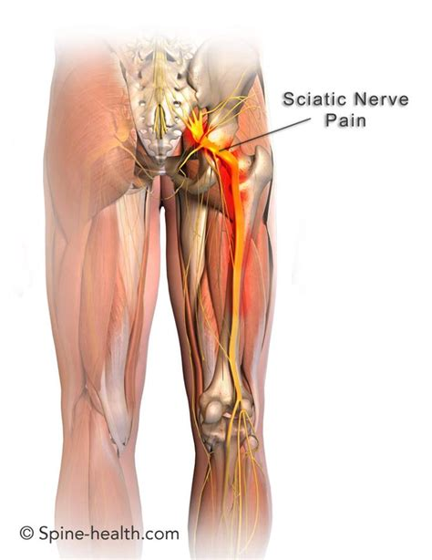 chronic back pain relief picture 9