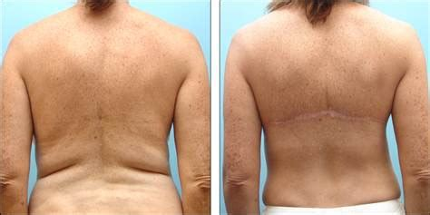 procedure straightens h on nbc picture 5