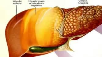fatty liver symptoms picture 9