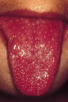 syphilis chancre color on penis tip picture 12