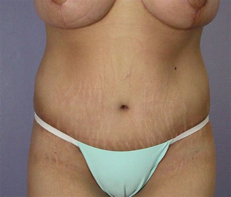us savings plan covering weight loss surgery picture 3