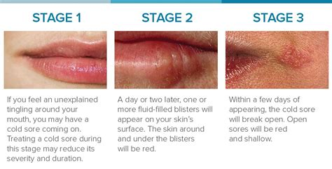 although, cold sores is one of the symptoms picture 1