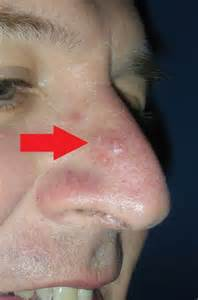 nose skin cancer pictures picture 1