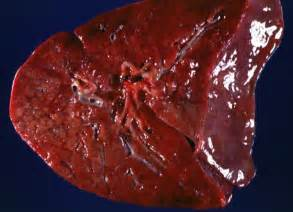 cystic picture 6
