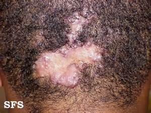 head skin disease picture 3