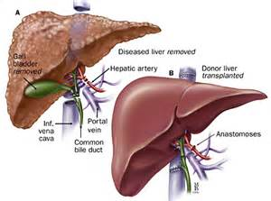 ww ii and diseases of the liver picture 9