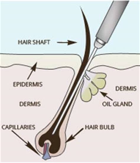 inflamed hair follicle on vagina picture 9