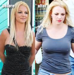 breasts before and after pregnancy pictures picture 6