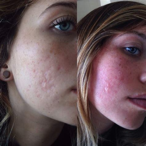 laser resurfacing pictures acne scars picture 7