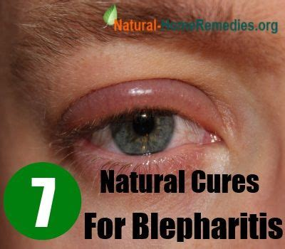 aayurvedic treatment for eyelid wart picture 19