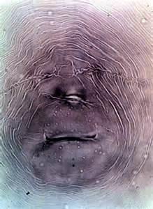 lump in perineum picture 6