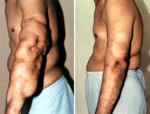 skin lacks after lipo 2013 picture 7