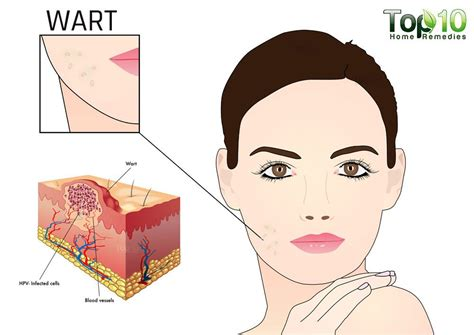 wart remedies picture 15