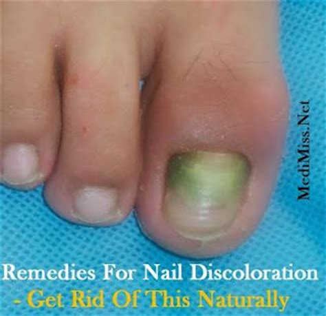 remedies for toenail fungus+ painting toenails picture 5