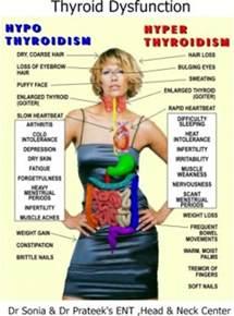 acupuncture hypothyroidism picture 10