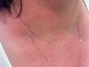 dermatology skin rashes pictures picture 19