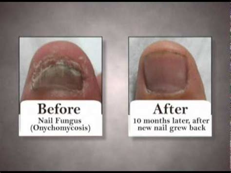 premier nail fungus chicago picture 1