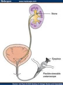 Laser prostate surgery picture 9