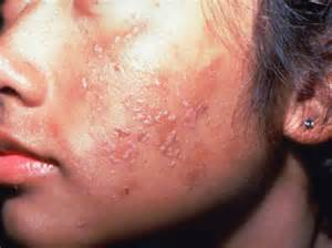 wart symptoms picture 1