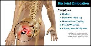 pain the the hip joint picture 5