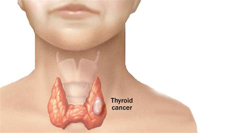 after thyroid cancer picture 6