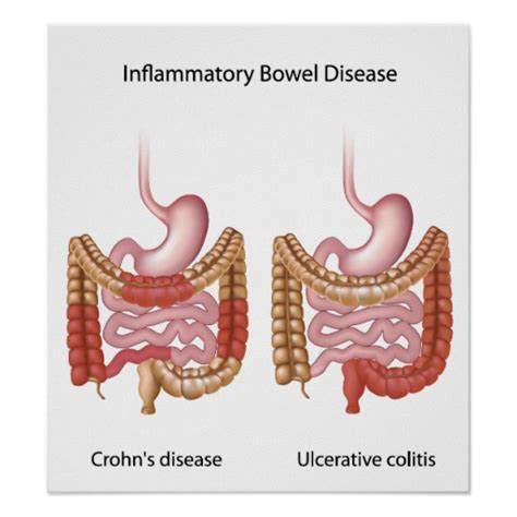 pictures inflammatory bowel disease picture 1