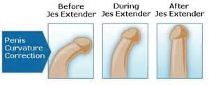 unani treatment for curve penis picture 7