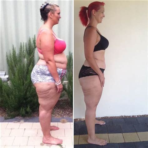will loose skin from weight loss get better with time picture 8