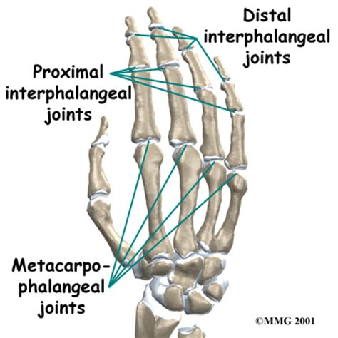 first finger joint pain picture 7