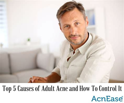 causes of adult acne picture 6