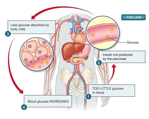 does gallbladder removal effect blood sugar readings picture 1