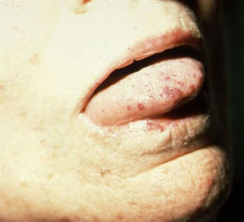 herpes and fasciculations picture 2