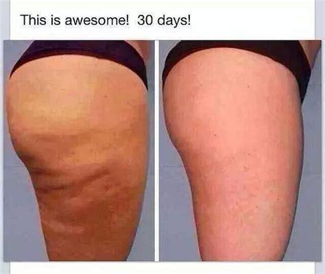 free cellulite pics picture 1