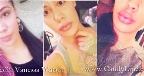watson lip plumper picture 3