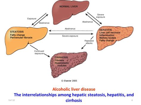 alcoholic liver disease picture 5