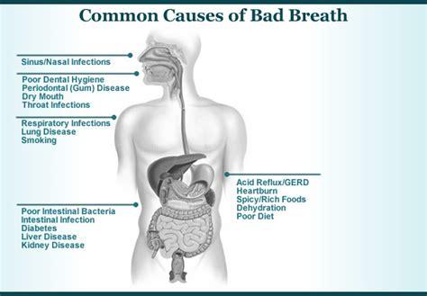 due wisdom teeth cause chronic bad breath picture 1