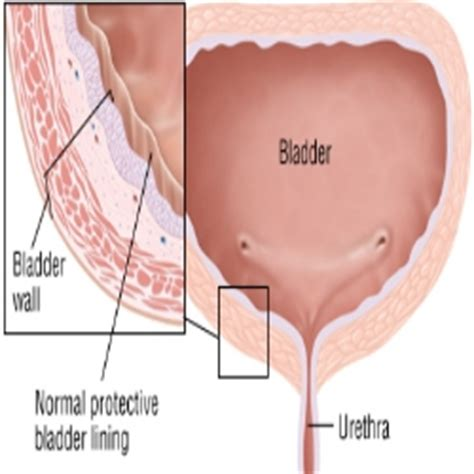 how to remove hair from bladder in pregnancy picture 3