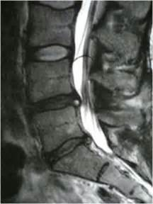 degenerative joint disease of cervical spine picture 5