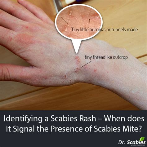 scabies skin rash picture 11