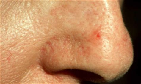 acne marks wont go away picture 2